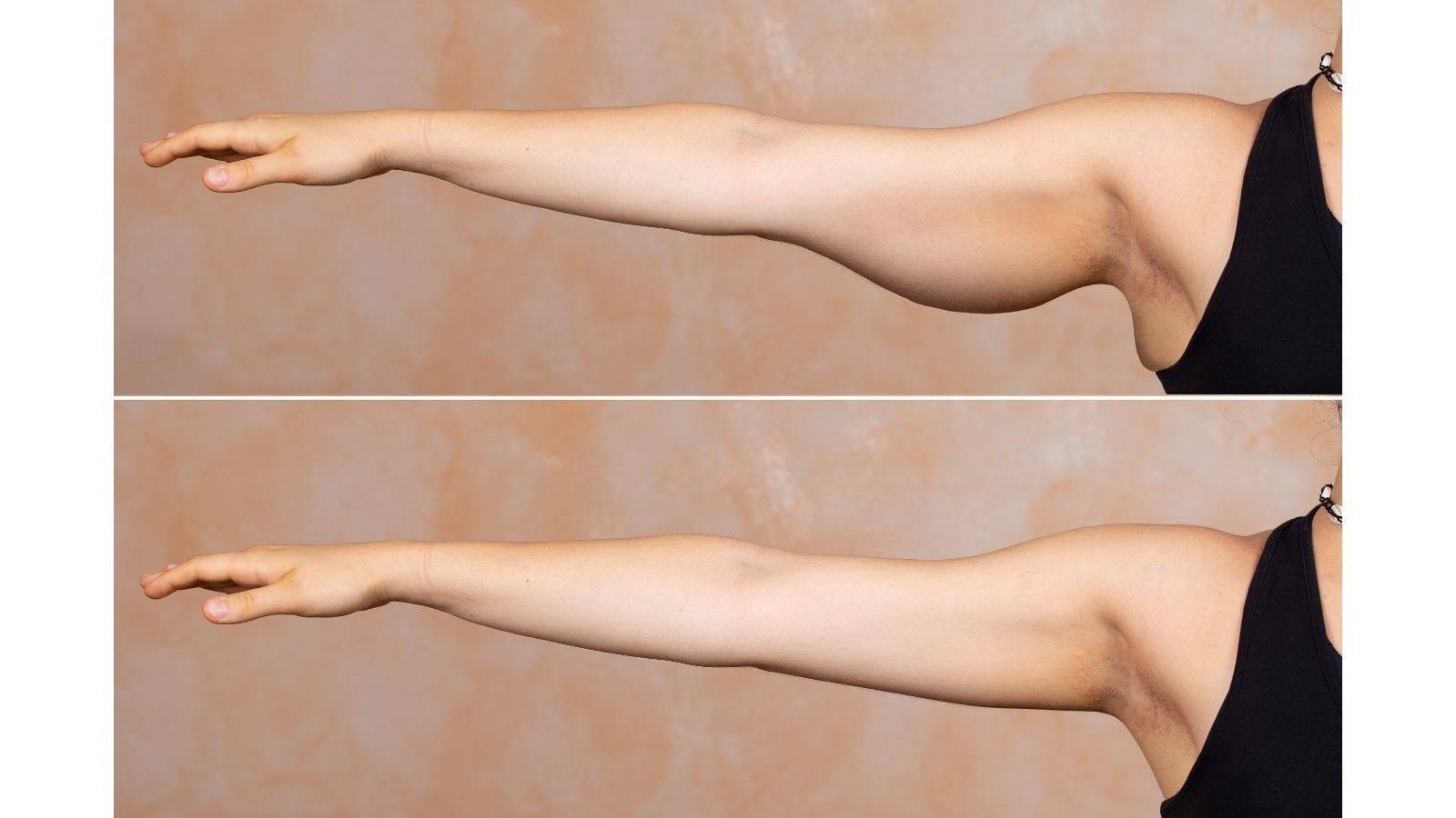加齢でたるんだ二の腕がキュッと引き締まる【上腕三頭筋に効く!1分トレーニング&マッサージ】