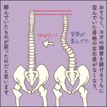 歪んだ背骨とまっすぐの背骨