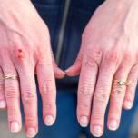 手洗いやハンドサニタイザーによる手荒れに!皮膚科医が教えるハンドケア