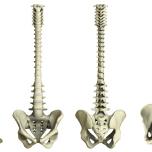 骨盤の後傾